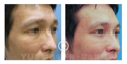 肉毒桿菌素抬頭紋及八字眉改善